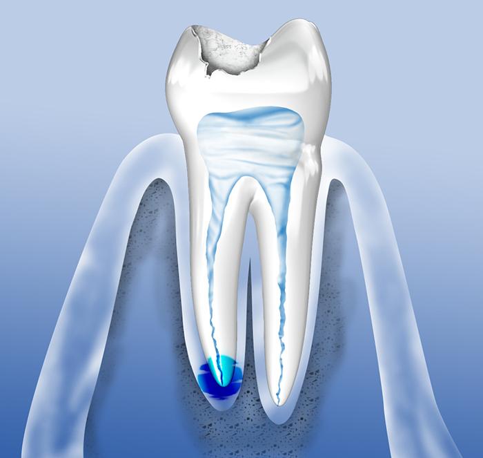 zahnschmerzen wurzelbehandlung