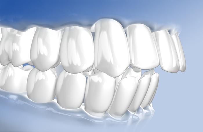 Zähne wachsen nach