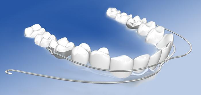 Zahnspange außenbogen Headgear einsetzen,