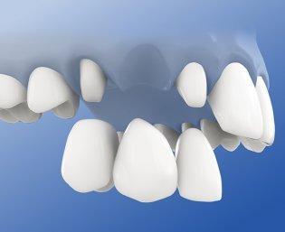 Endpfeilerbrücke schwebt über Zahnlücke