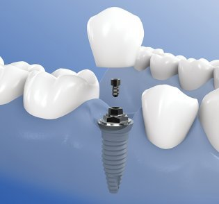 Implantat mit künstlicher Zahnkrone im Knochen